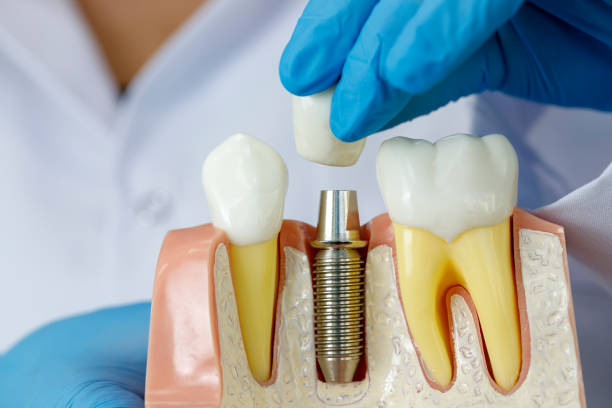 Are Dental Implants An Extremely Painful Procedure?