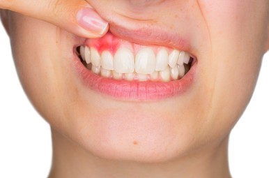 Protect Your Gums By Avoiding These Foods