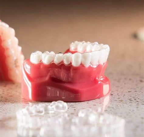 7 Reasons to Choose Invisalign That Don't Have Anything to Do With Appearance